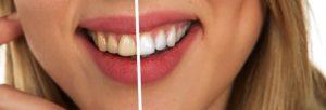 歯のホワイトニングの画像
